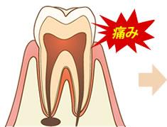 虫歯で痛みが進行している歯